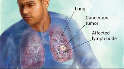 Kanker Paru, Gejala, Penyebab dan