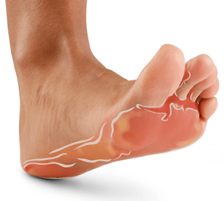 Is athlete's foot contagious | Vesicular athlete's foot vs Moccasin athlete's foot