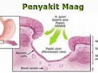 Mengulas Pengertian, gejala, dan cara mengatasi penyakit maag secara lengkap