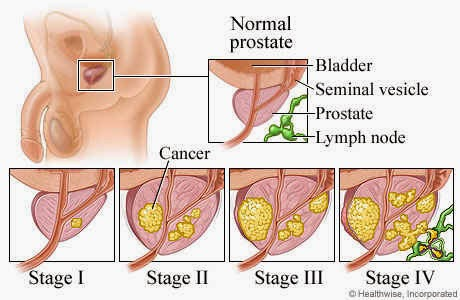 Prostate Cancer Research with Transgenic Mouse Model