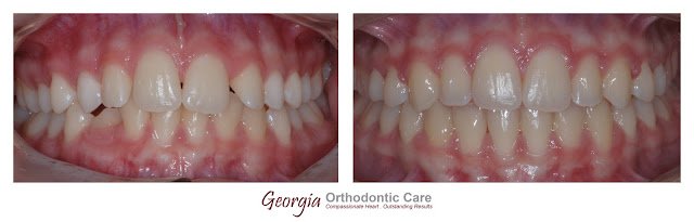 Orthodontic Treatment of Double Maxillary Canine Impaction in the Palate, Georgia Orthodontic Care