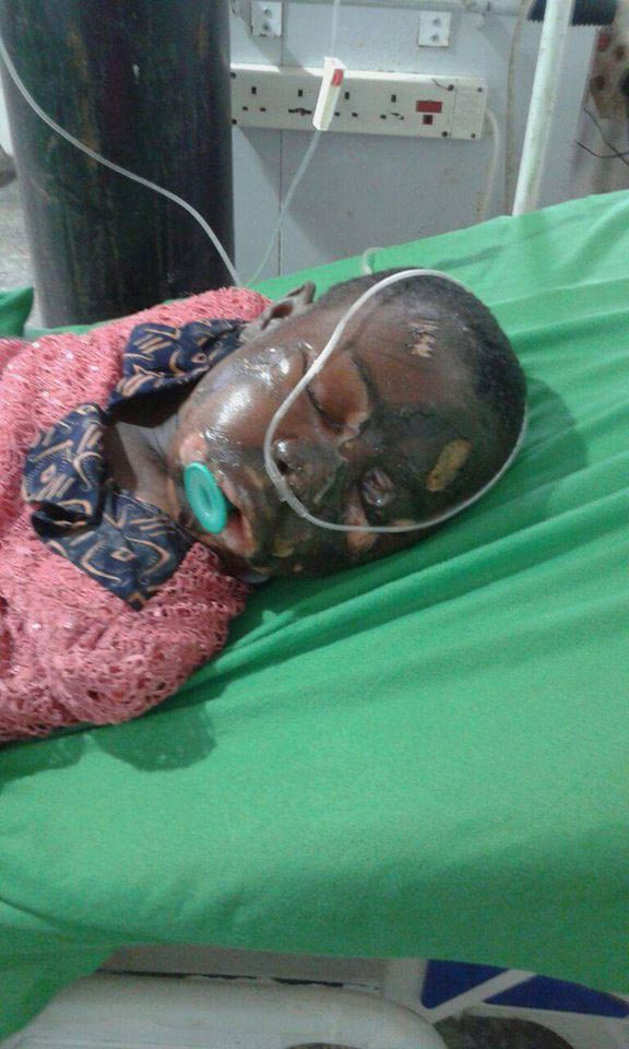 Graphic photos: Girl falls inside boiling oil while having epileptic seizure
