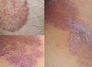 cara tepat untuk menghilangkan bekas gatal eksim di kulit selangkangan