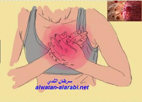 خطير جداا...كيف تعرفين نفسك انك مصابة بسرطان الثذي Cancer du sein واعراض احتمال وجود المرض.