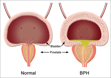 Obat Alami Prostat Hiperplasia