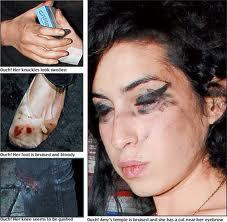 OhhMaybeBaby: Breaking News; Amy Winehouse dead!
