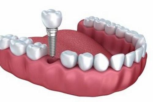Kết quả hình ảnh cho Vai trò của bề mặt trụ răng implant đem đến cho bạn là gì?