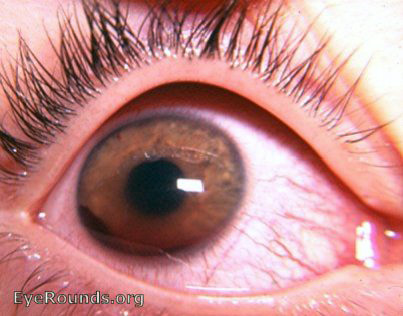 hyphema pictures blood in the eye managing hyphema eyedolatry 7850
