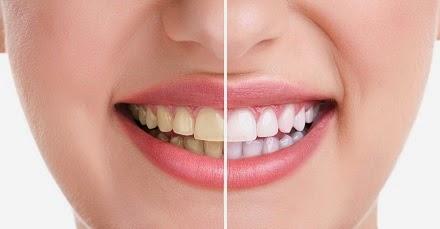 Cara Proses Menjaga Kesehatan Gigi dan Mulut Cara Proses Menjaga Kesehatan Gigi dan Mulut