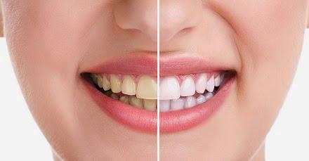 Cara Proses Memutihkan Gigi Secara Alami Cara Proses Memutihkan Gigi Secara Alami