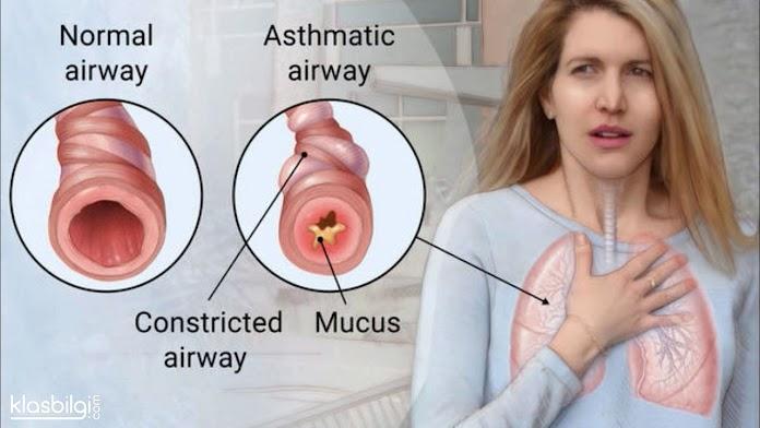 Astım Hastaları Nelere Dikkat Etmeli? Önemli İpuçları