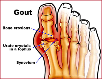 Gout, Hyperuricemia, High Uric Acid, Herbal Remedies
