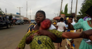 Woman Stabbed On The Face After A Fight Broke Out In Lagere Area Of Ile-Ife (PHOTOS)