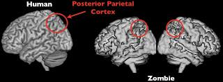 Timothy Verstynen Bradley Voytek - Zombie Research Society - zombie brain parietal cortex