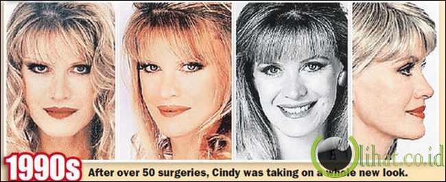 Cindy Jackson - Hasil Operasi Plastik tahun 1990 an