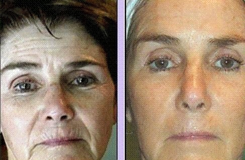 Dynamic Facelift Without Surgery Obtained With Facial Toning
