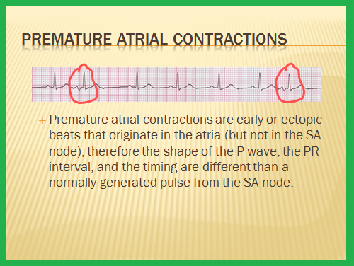 premature atrial contraction