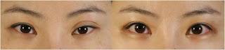 Cara Memperbaiki Lipatan Kelopak Mata yang Berbeda