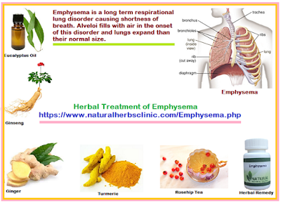 Herbal-Treatment-of-Emphysema