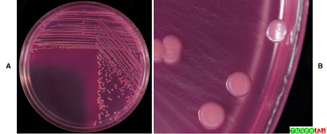 A, Lactose-fermenting Escherichia/Citrobacter-like organisms growing on MacConkey agar (MAC). Notice the dry appearance of the colony and the pink precipitate of bile salts extending beyond the periphery of the colonies. B, Close-up of dry, flat Escherichia/Citrobacter-like lactose fermenters growing on MAC. Compare with Figure 4, B.