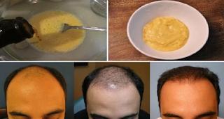 قام بتحضير هذا الخليط بمكونين فقط و وضعه على شعره: النتائج لا تصدق !!!