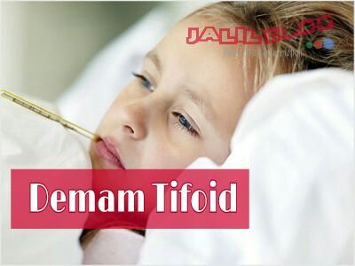 Mengenal demam tifoid ( typoid fever )