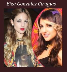 Cirugia Plastica de Eiza Gonzalez