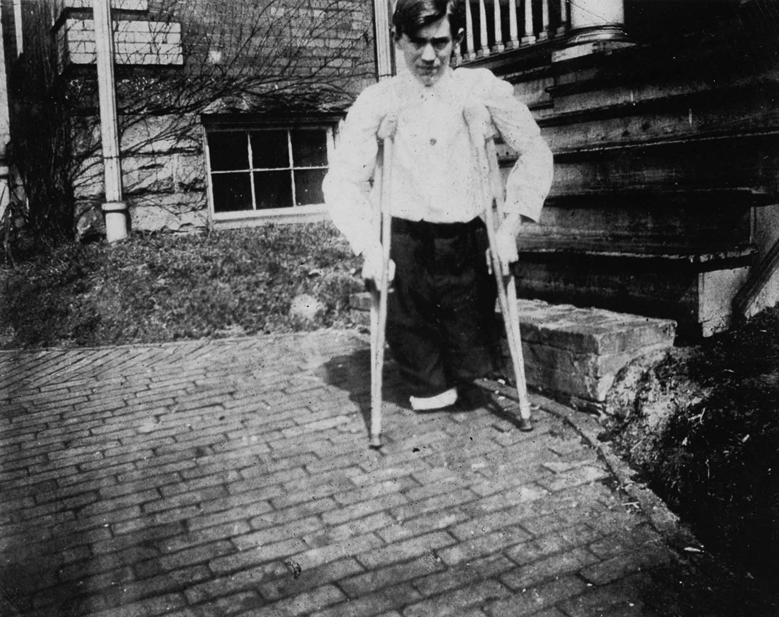 Nola McKinney, whose legs were cut off by a motor car in a coal mine in West Virginia when he was 14 years old. 1910.