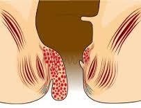 Penyebab dan cara mudah mengobati penyakit wasir tanpa operasi