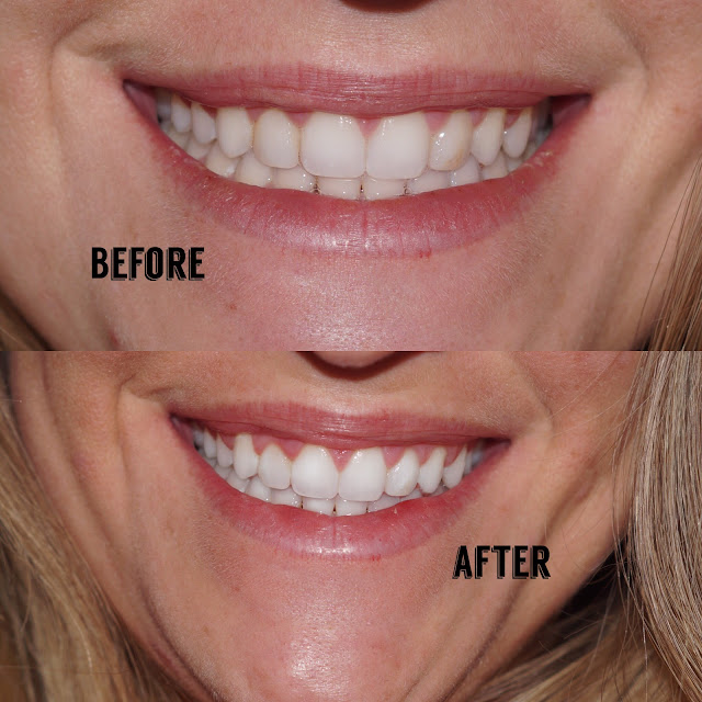 smile brilliant teeth whitening before after