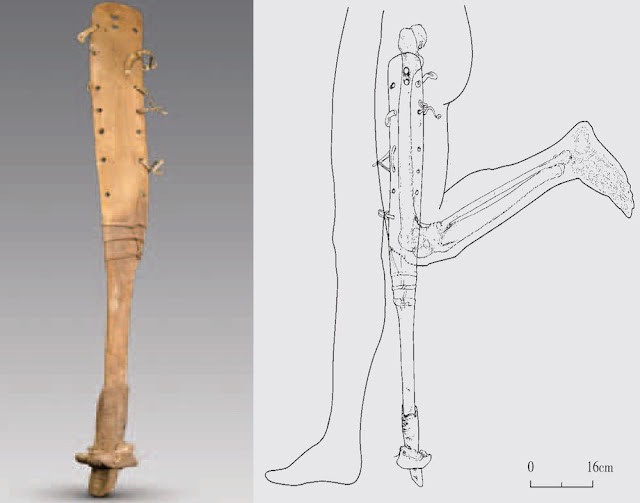 Prosthetic leg found in 2,200-year-old Chinese tomb