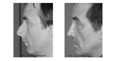 Rinoplastia Cirugía Estética