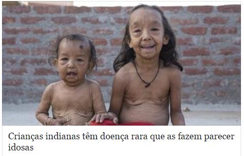 As crianças indianas que tem aparência de idosos