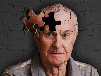 Cuidado de enfermos de Alzhéimer