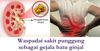 Pencegahan batu ginjal dan obat penghancur batu ginjal di apotik