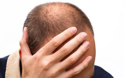 Bald Hair grower The Effectual