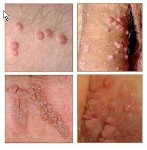 Bintik Kecil Di Dalam Kemaluan Wanita Dan Obatnya