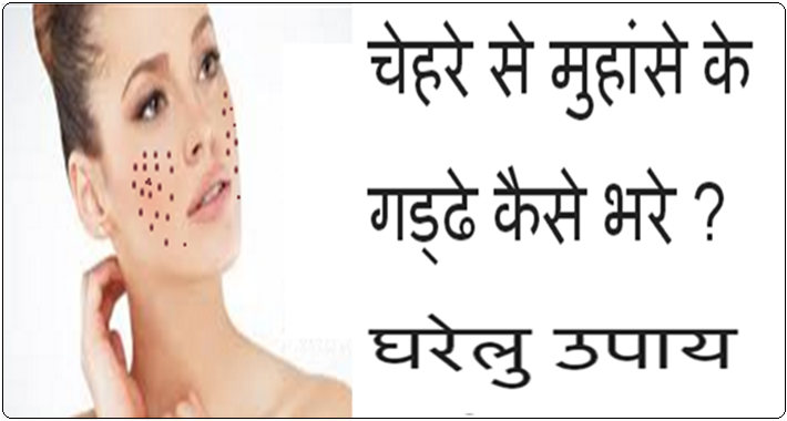 Muhanse ke gaddhe kaise bhare
