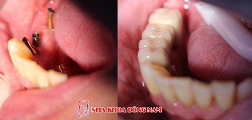 có nên cắm ghép răng implant không -2