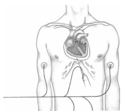 Aspirating pericardial fluid. In pericardiocentesis, a needle and syringe are inserted through the chest wall into the pericardial sac