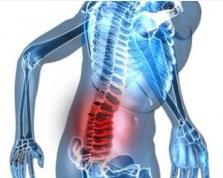 Sakit Punggung: Penyebab, Gejala dan Perawatan