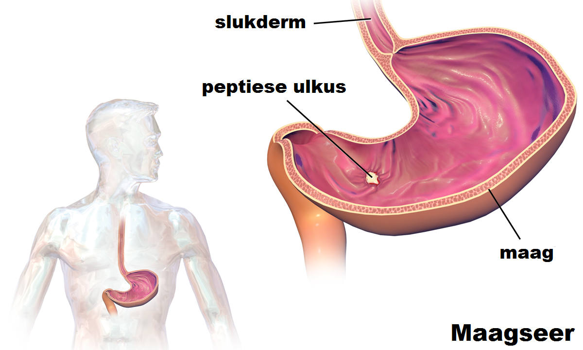 Bladder Infection After Drinking Alcohol