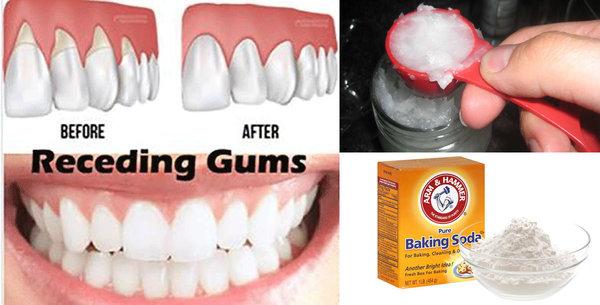 recending gums