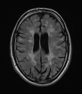 2016 MRI Scan after treatment showing 'calmer' lesions