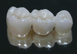 Carroll Dental Lab Crystal Diamond Zirconia