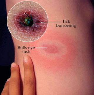 A bull's eye rash with a tick still burrowed in the skin  tick bite rash pictures