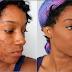 Struggling with Dark spots & Stretch marks? Here is the 100% miracle solution I and 32 others used to cure/get rid of it and how you can get it too This is a sponsored post...