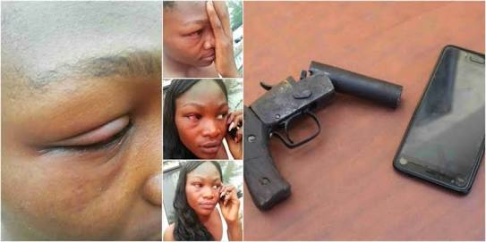See What Armed Robbers Did To This Lady Inside A Bus In Onitsha (Photos)