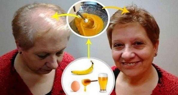 Best Recipe Against Hair Loss