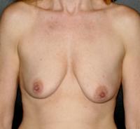 Aumento de senos con implantes foto antes Guadalajara Mexico antes y despues